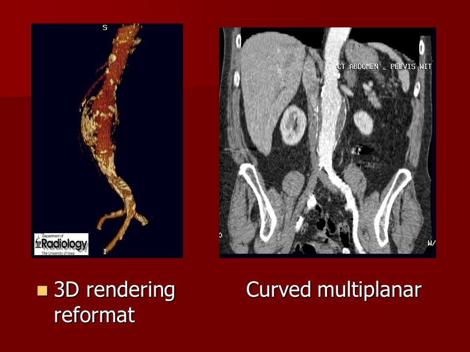 3D rendering Curved multiplanar reformat