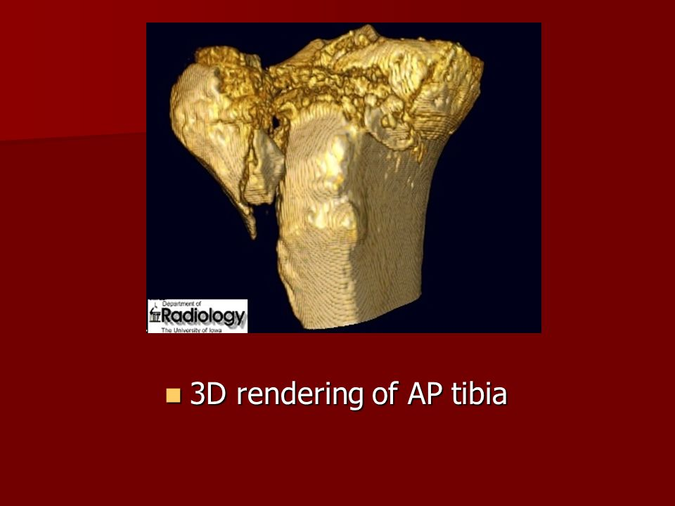 3D rendering of AP tibia