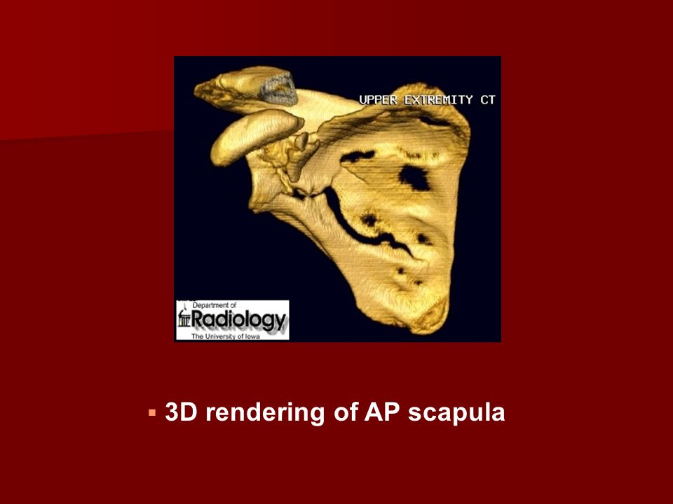 3D rendering of AP scapula