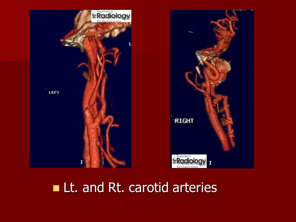Lt. and Rt. carotid arteries