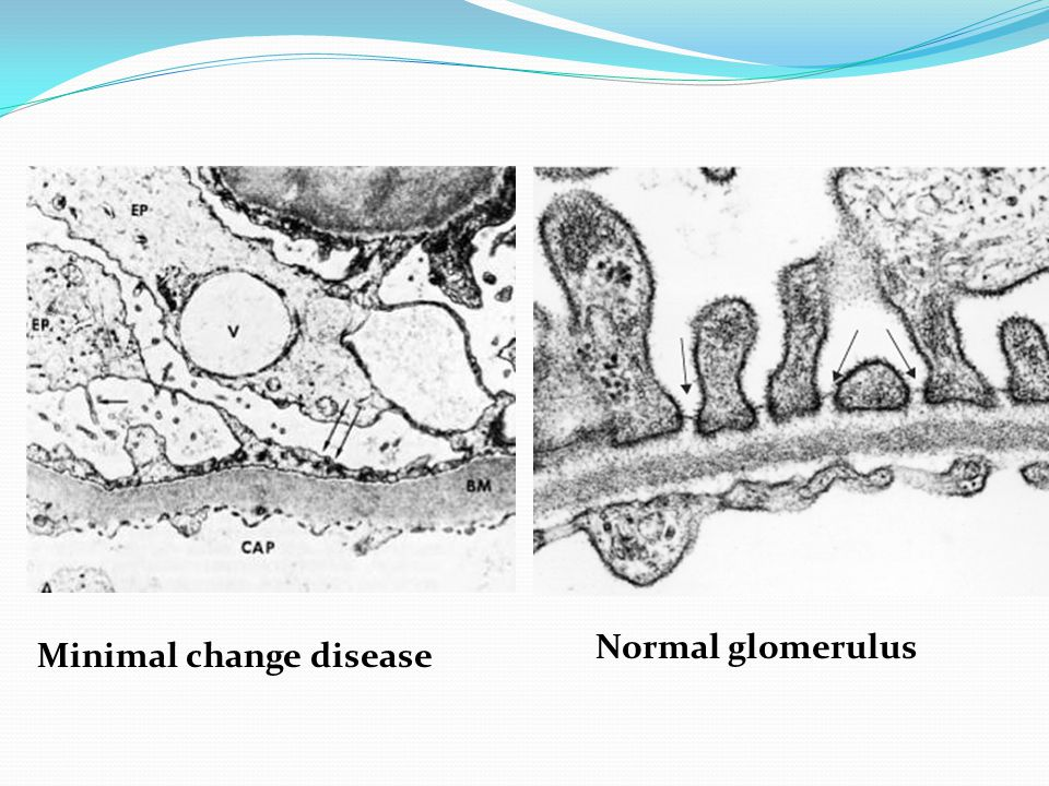 Normal glomerulus Minimal change disease