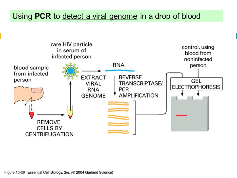 10_29_PCR_viral.jpg Using PCR to detect a viral genome in a drop of blood 10_29_PCR_viral.jpg