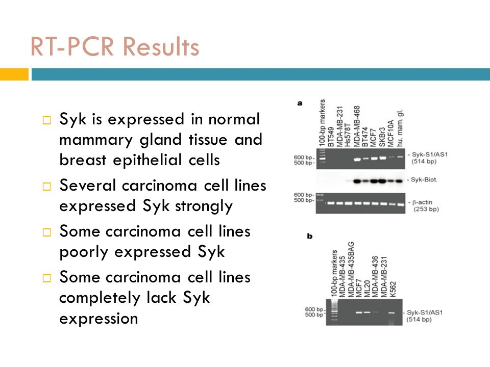 RT-PCR Results Syk is expressed in normal mammary gland tissue and breast epithelial cells. Several carcinoma cell lines expressed Syk strongly.