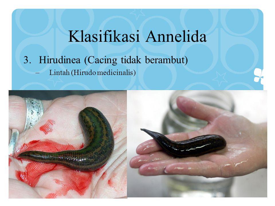 Klasifikasi Annelida Hirudinea (Cacing tidak berambut)