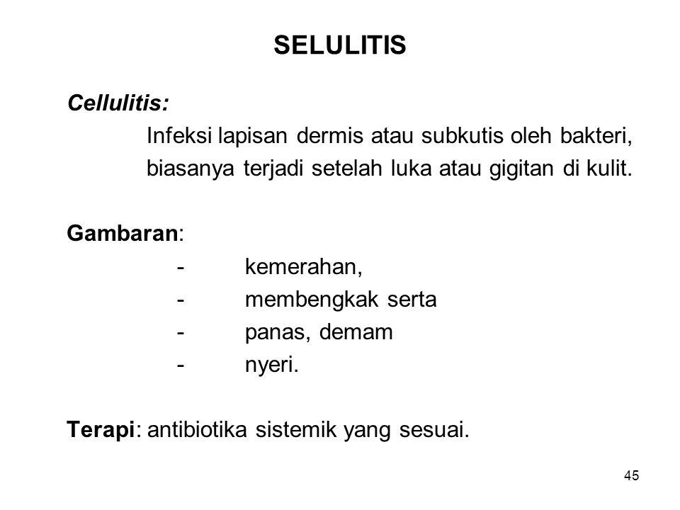 SELULITIS Cellulitis: