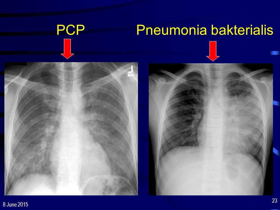 PCP Pneumonia bakterialis