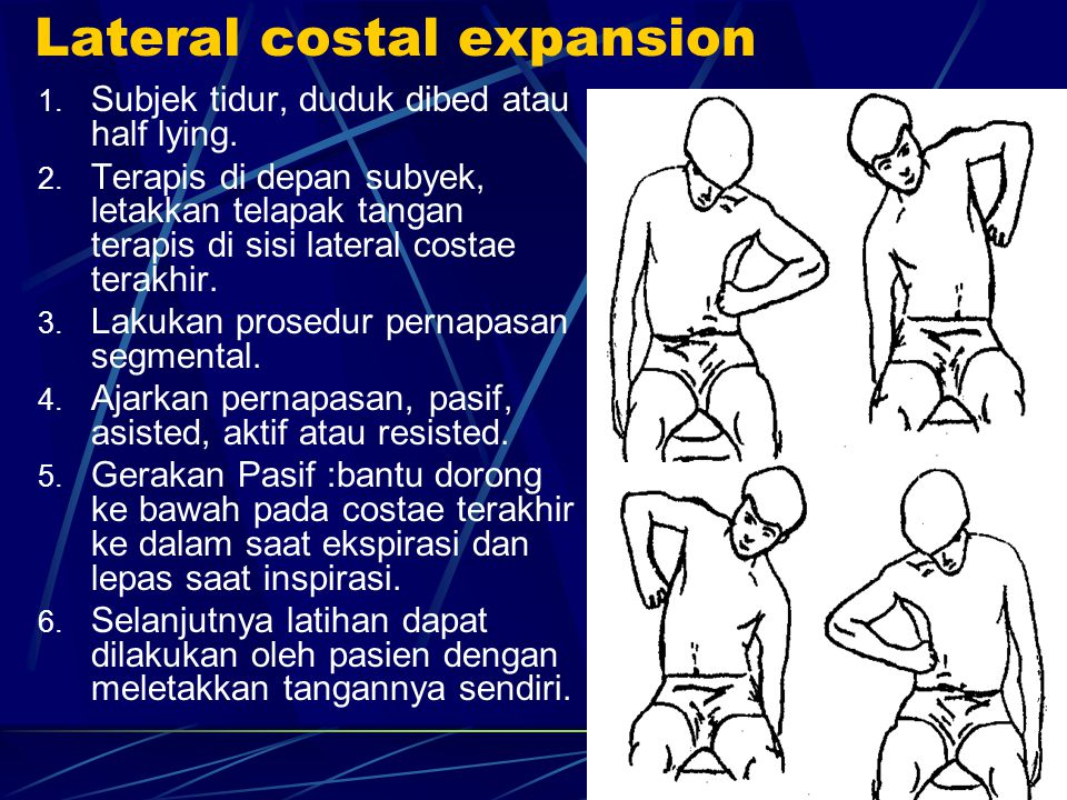Lateral costal expansion