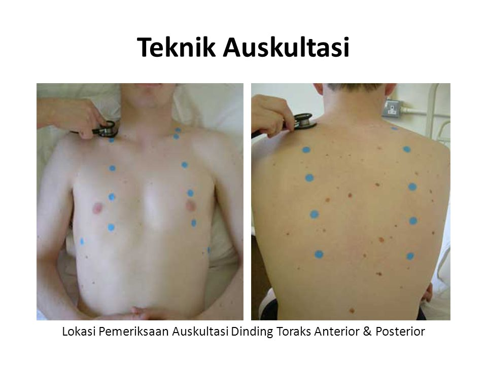 Lokasi Pemeriksaan Auskultasi Dinding Toraks Anterior & Posterior