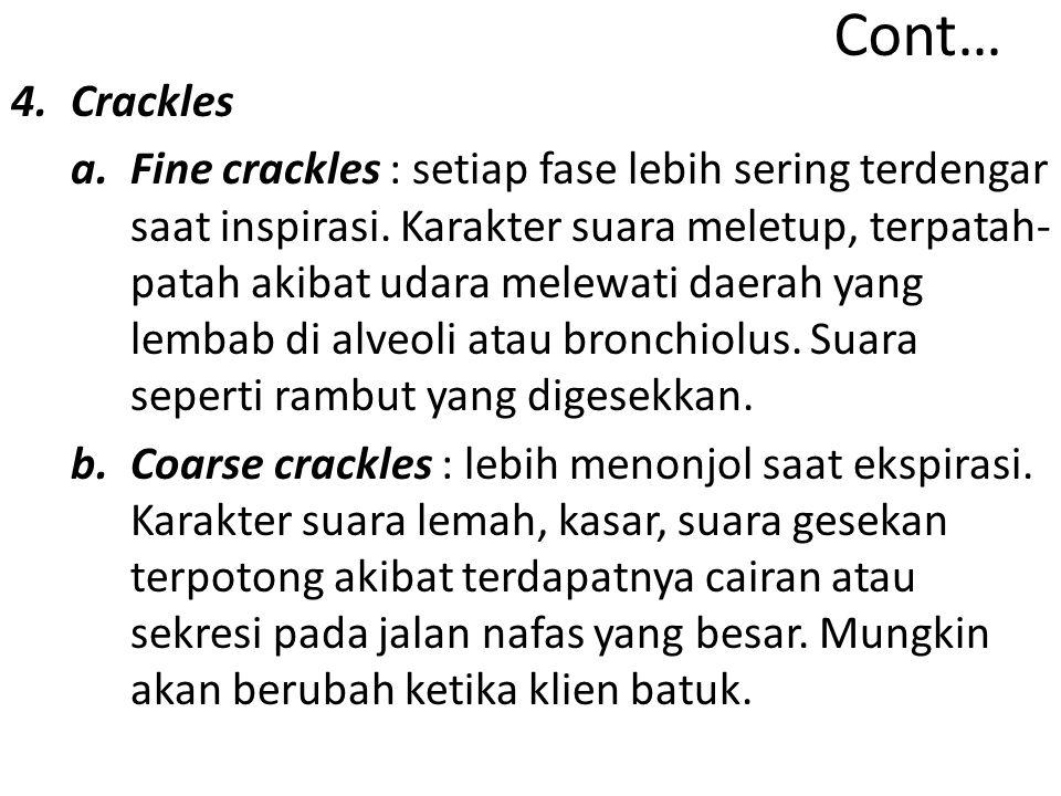 Cont… Crackles.