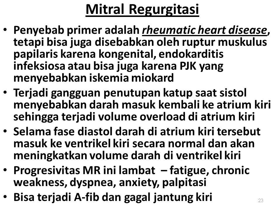Mitral Regurgitasi