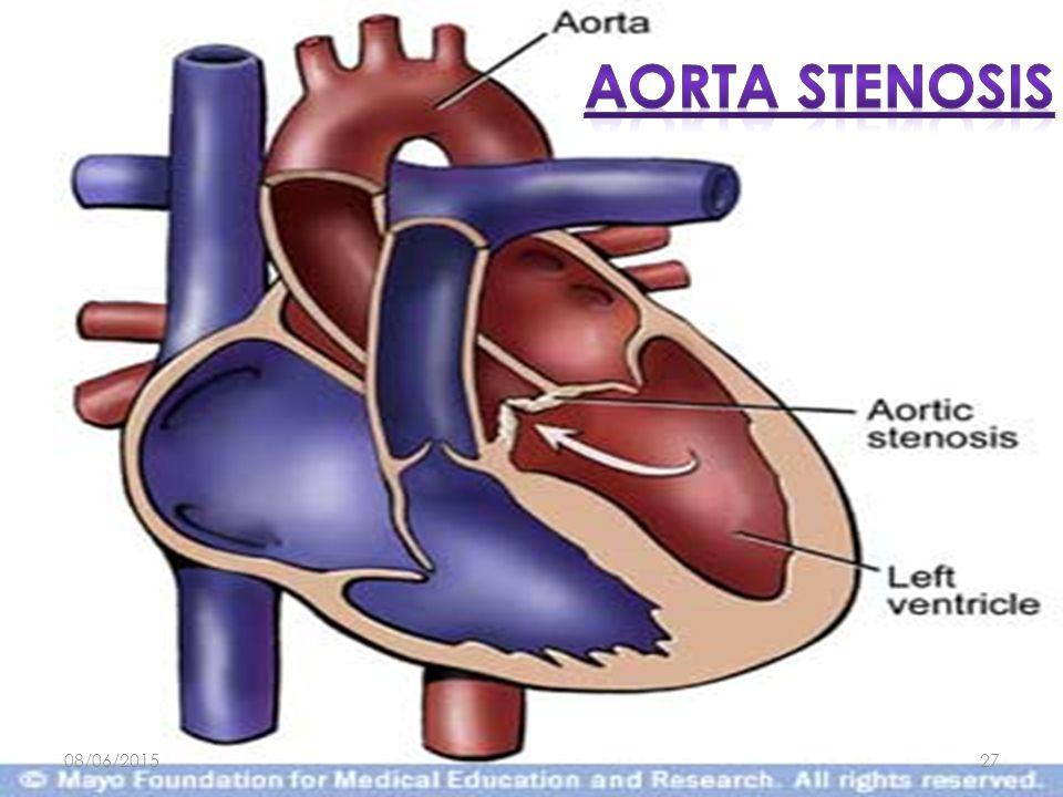 Aorta stenosis 16/04/2017