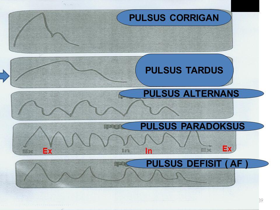 PULSUS CORRIGAN PULSUS TARDUS PULSUS ALTERNANS PULSUS PARADOKSUS
