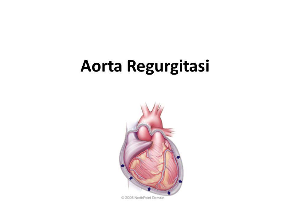 Aorta Regurgitasi