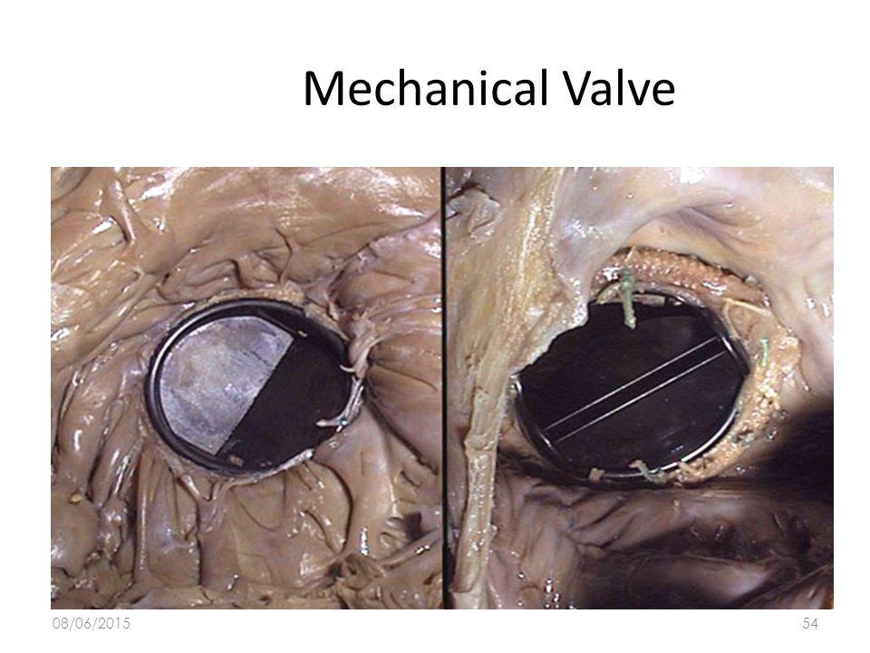 Mechanical Valve 16/04/2017