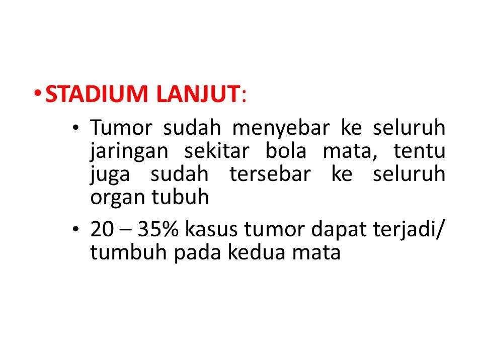 STADIUM LANJUT: Tumor sudah menyebar ke seluruh jaringan sekitar bola mata, tentu juga sudah tersebar ke seluruh organ tubuh.