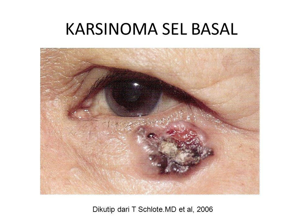 KARSINOMA SEL BASAL Dikutip dari T Schlote.MD et al, 2006