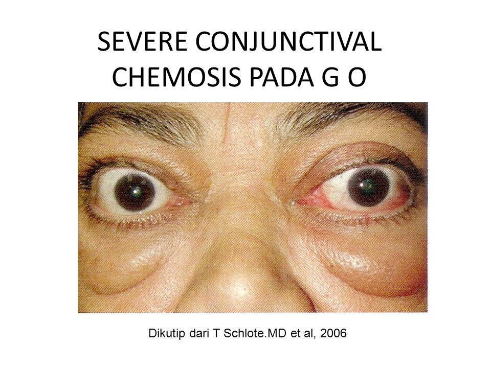 SEVERE CONJUNCTIVAL CHEMOSIS PADA G O