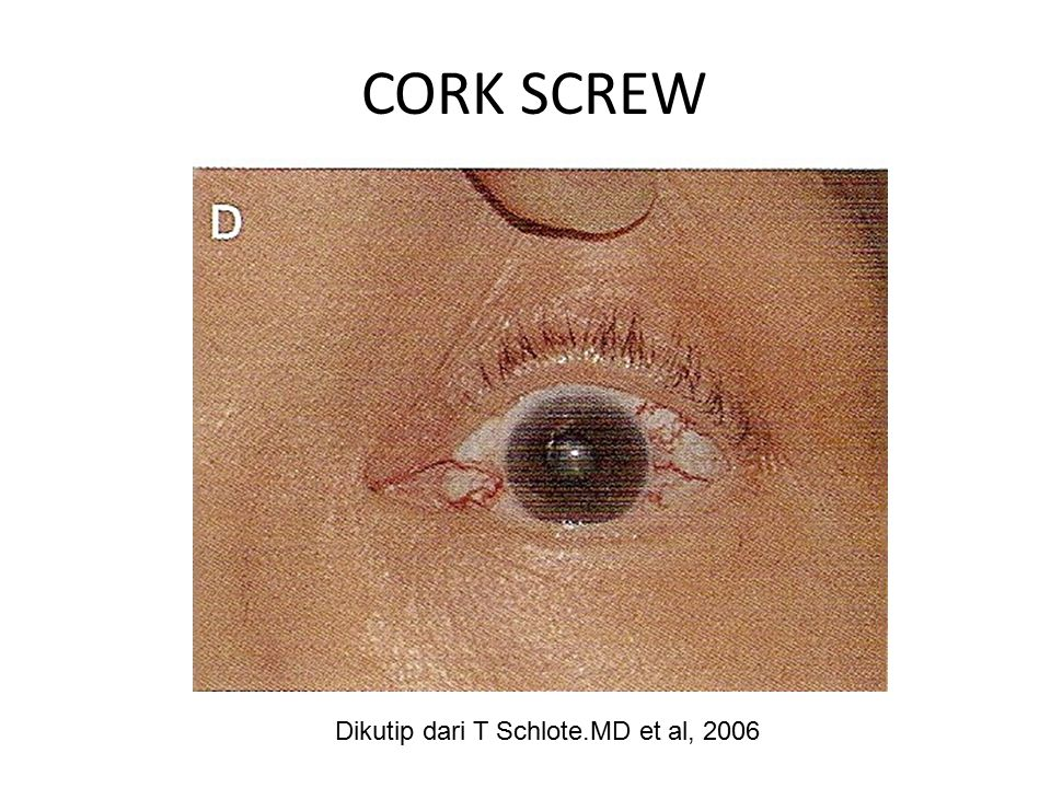 CORK SCREW Dikutip dari T Schlote.MD et al, 2006