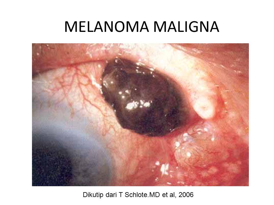 MELANOMA MALIGNA Dikutip dari T Schlote.MD et al, 2006
