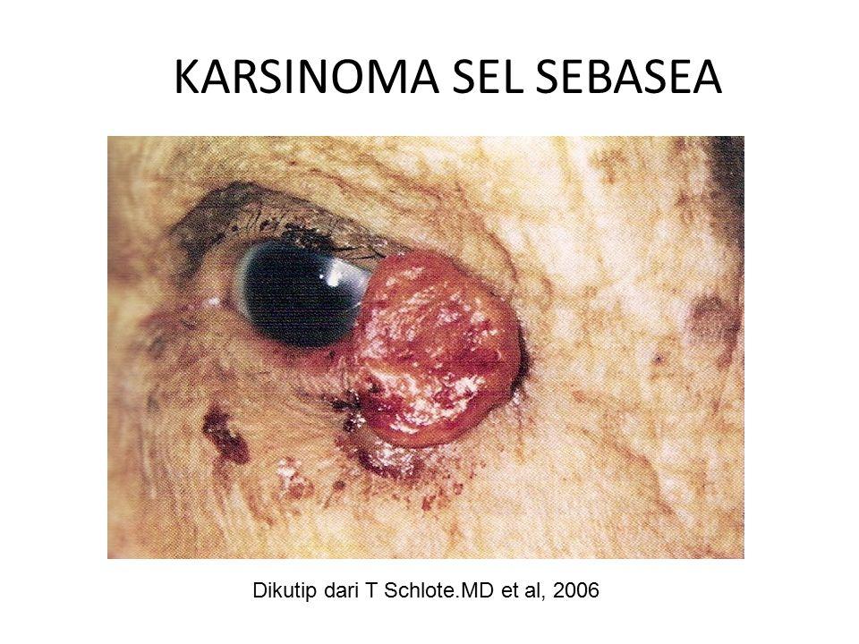 KARSINOMA SEL SEBASEA Dikutip dari T Schlote.MD et al, 2006