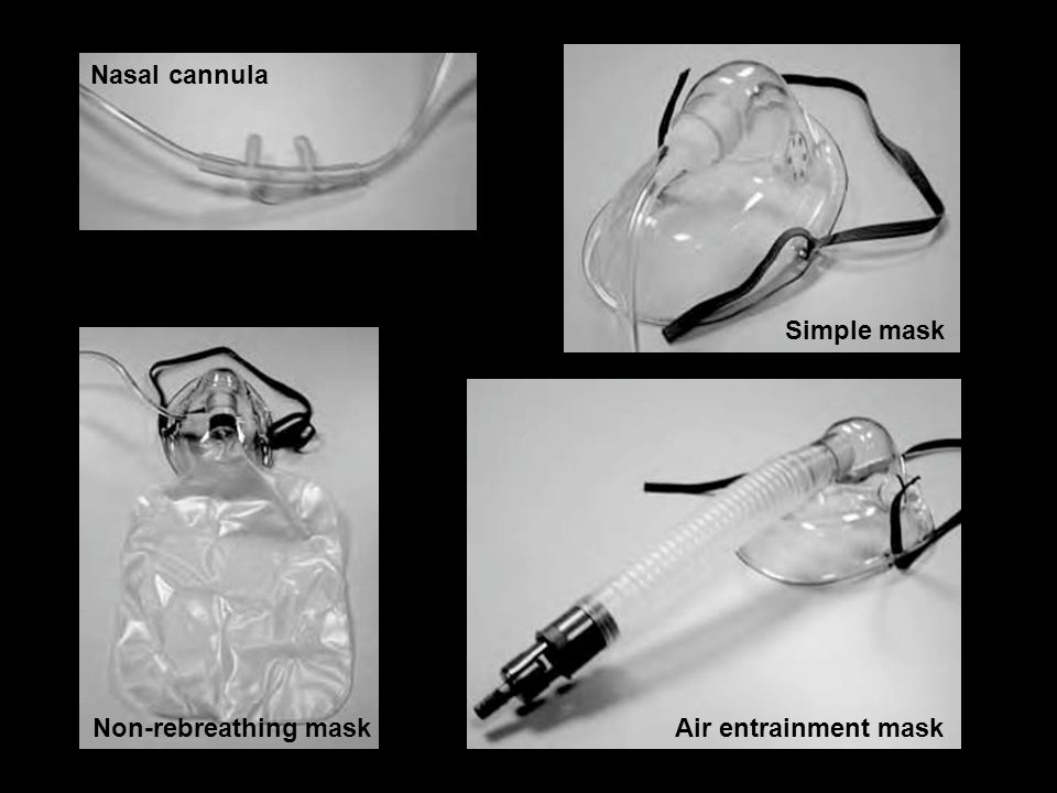 Nasal cannula Simple mask Non-rebreathing mask Air entrainment mask