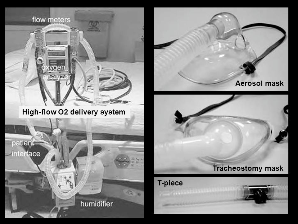 Aerosol mask High-flow O2 delivery system Tracheostomy mask T-piece