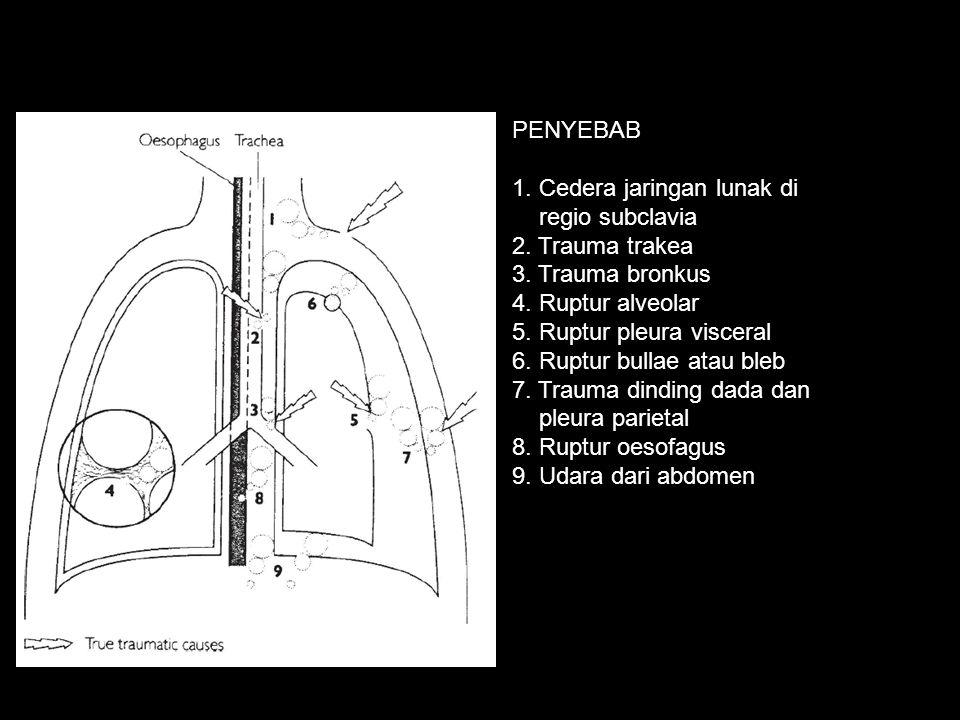 PENYEBAB 1. Cedera jaringan lunak di. regio subclavia. 2. Trauma trakea. 3. Trauma bronkus. 4. Ruptur alveolar.