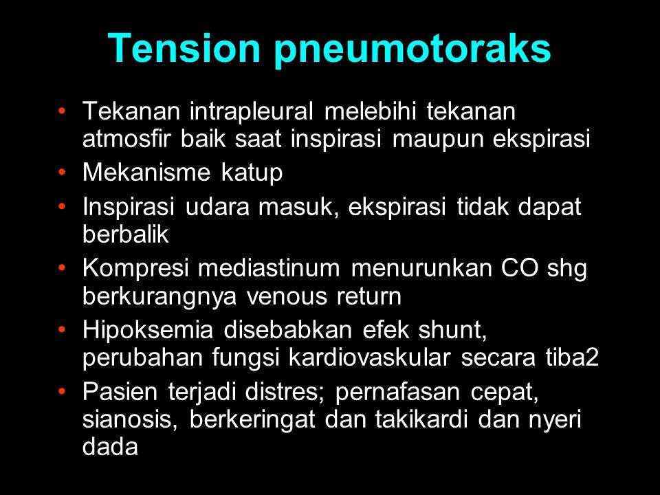 Tension pneumotoraks Tekanan intrapleural melebihi tekanan atmosfir baik saat inspirasi maupun ekspirasi.