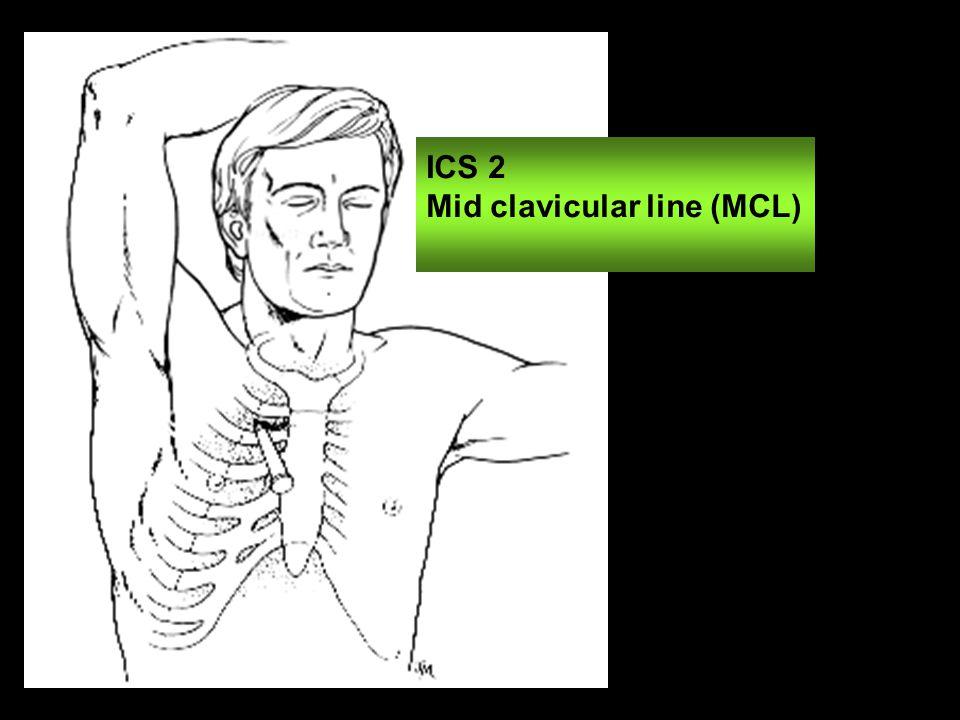 ICS 2 Mid clavicular line (MCL)