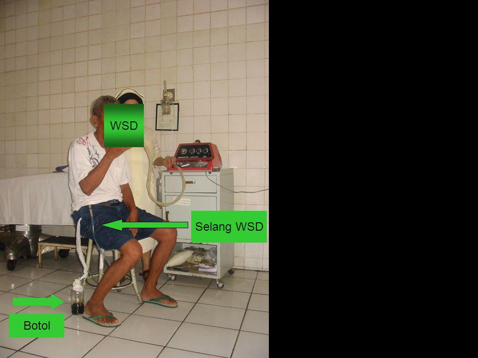 WSD Selang WSD Botol