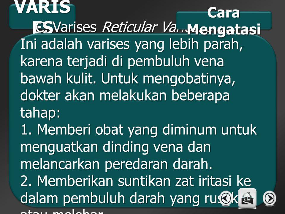 C. Varises Reticular Varicose Veins