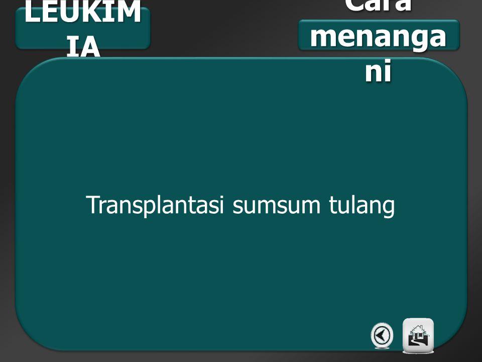 Transplantasi sumsum tulang