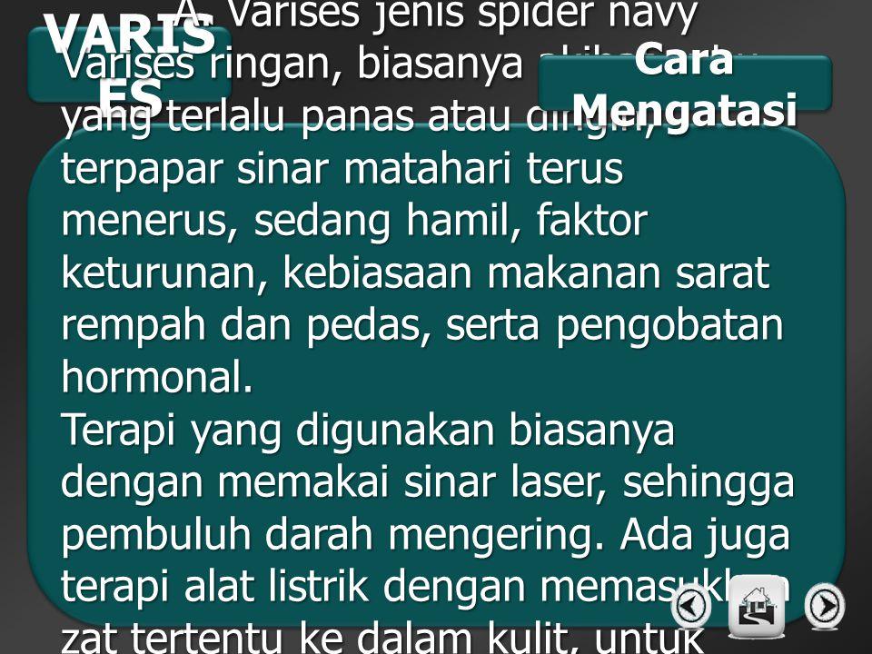 A. Varises jenis spider navy