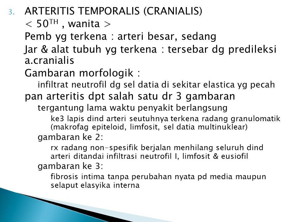 ARTERITIS TEMPORALIS (CRANIALIS) < 50TH , wanita >