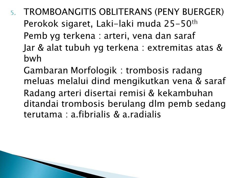 TROMBOANGITIS OBLITERANS (PENY BUERGER)