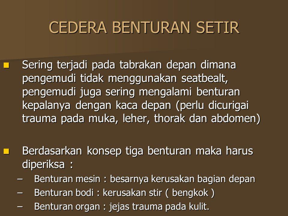 CEDERA BENTURAN SETIR