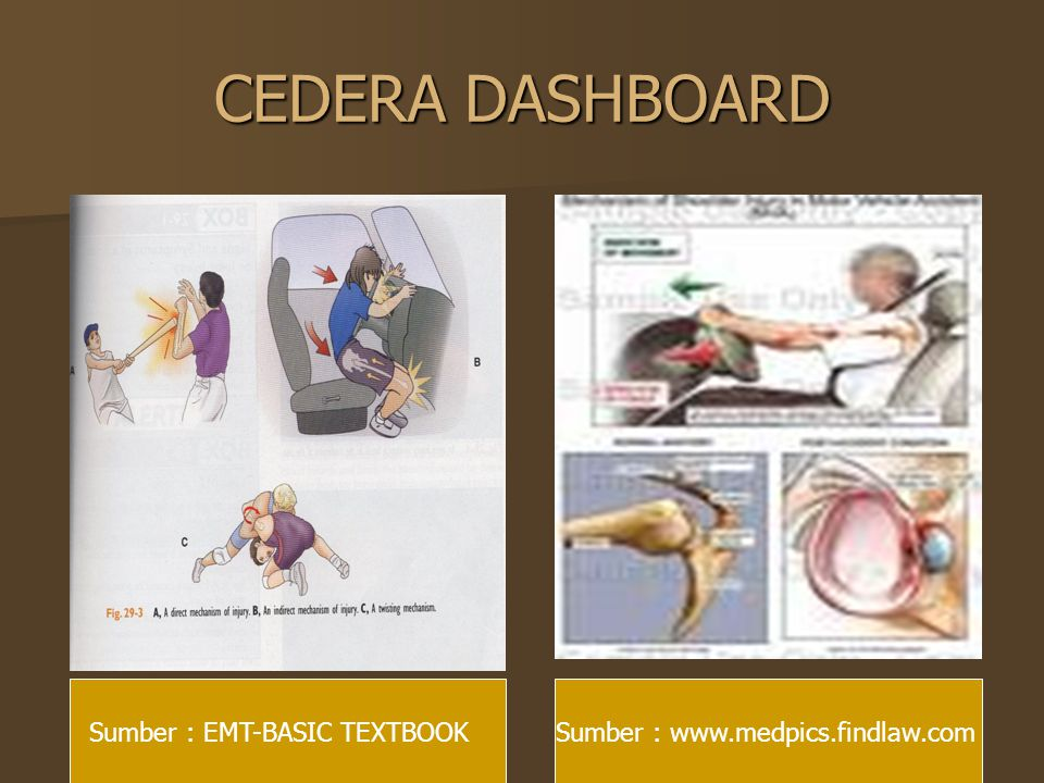 CEDERA DASHBOARD Sumber : EMT-BASIC TEXTBOOK
