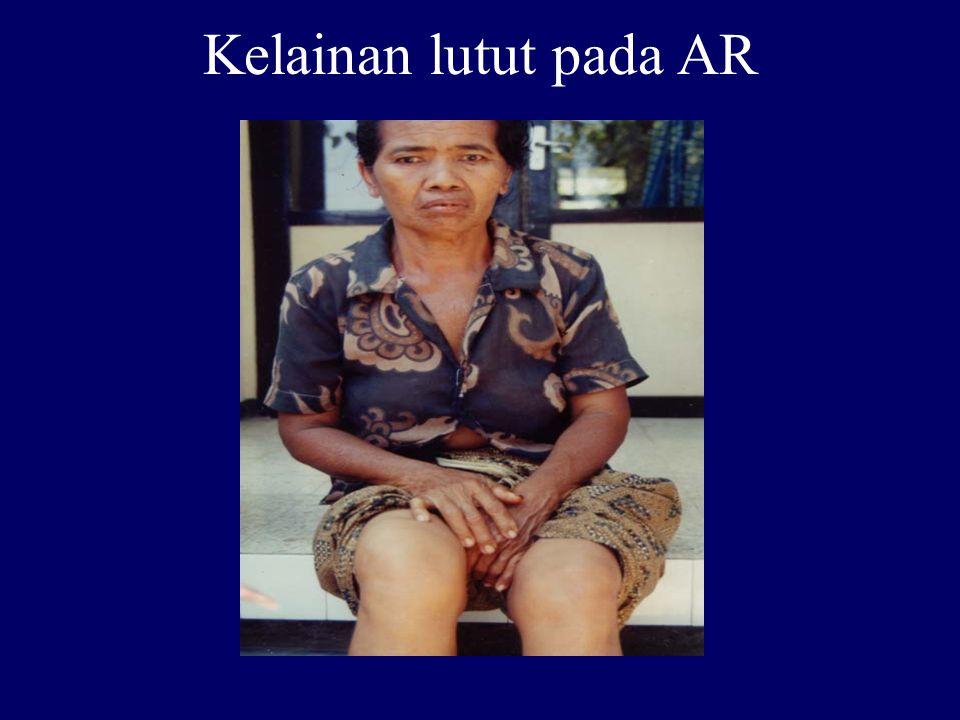 Kelainan lutut pada AR