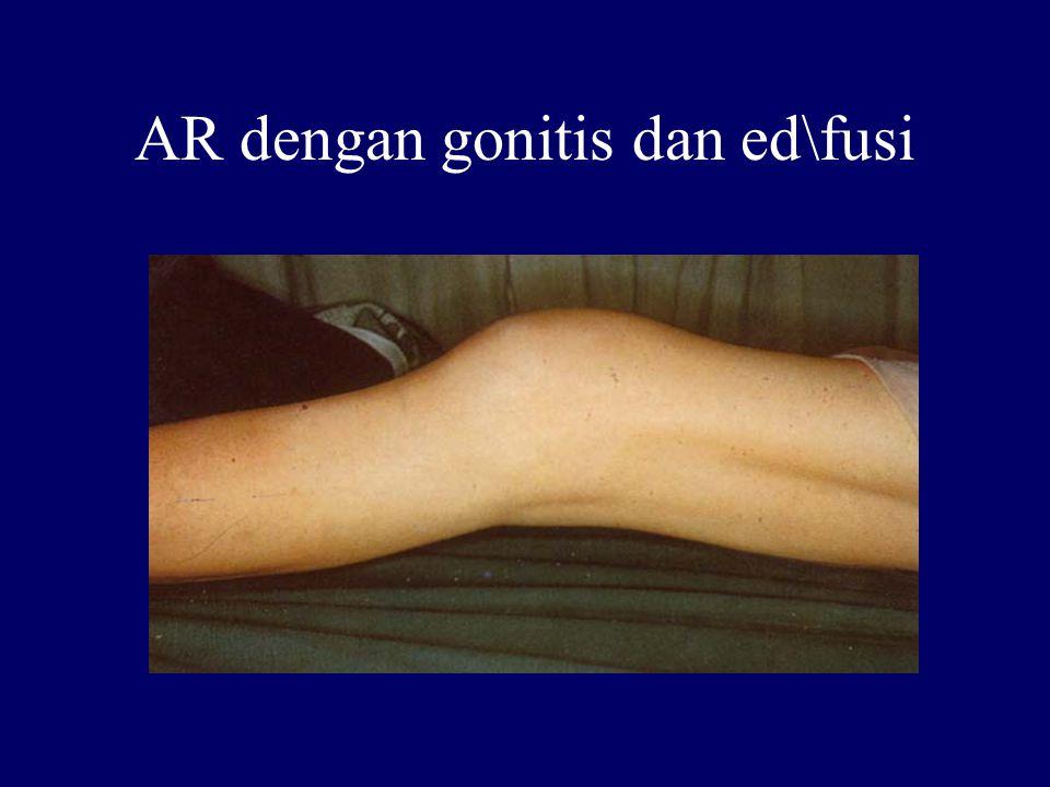 AR dengan gonitis dan ed\fusi