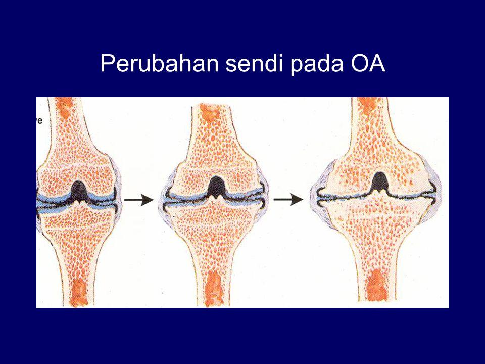 Perubahan sendi pada OA