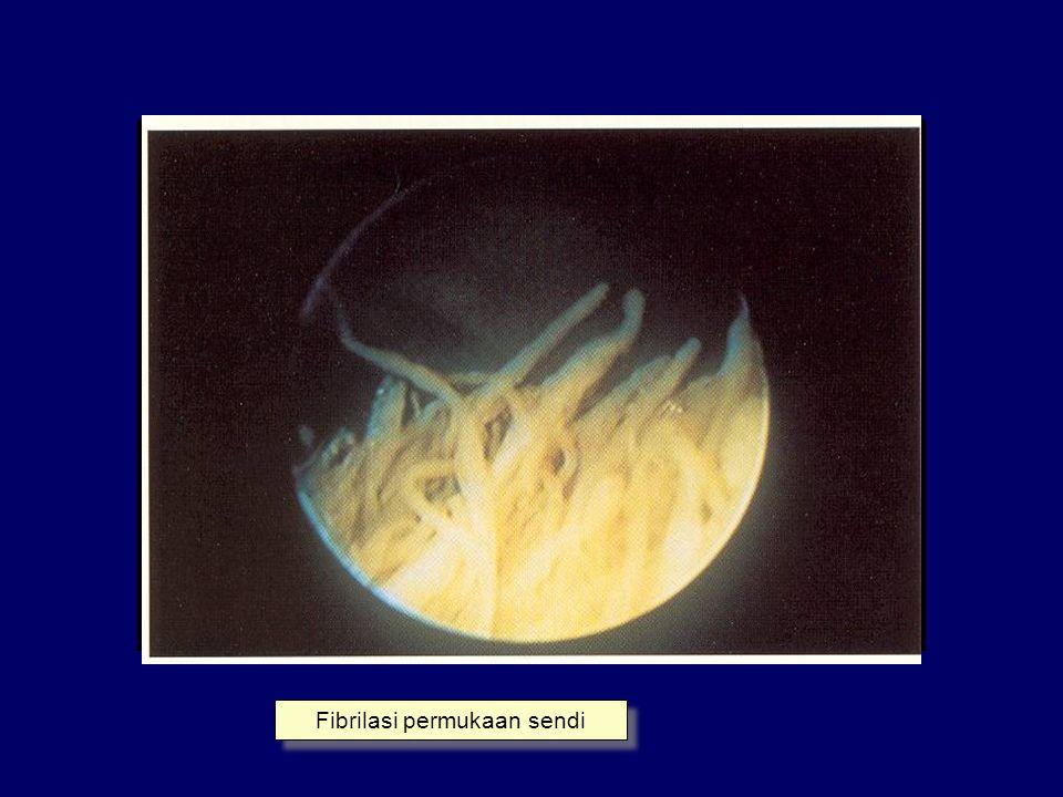 Fibrilasi permukaan sendi