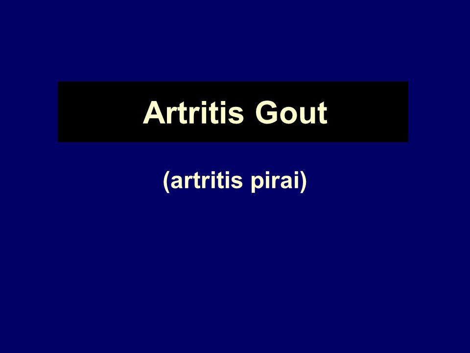 Artritis Gout (artritis pirai)