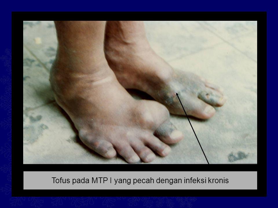 Tofus pada MTP I yang pecah dengan infeksi kronis