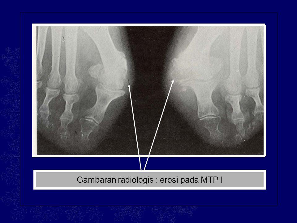 Gambaran radiologis : erosi pada MTP I