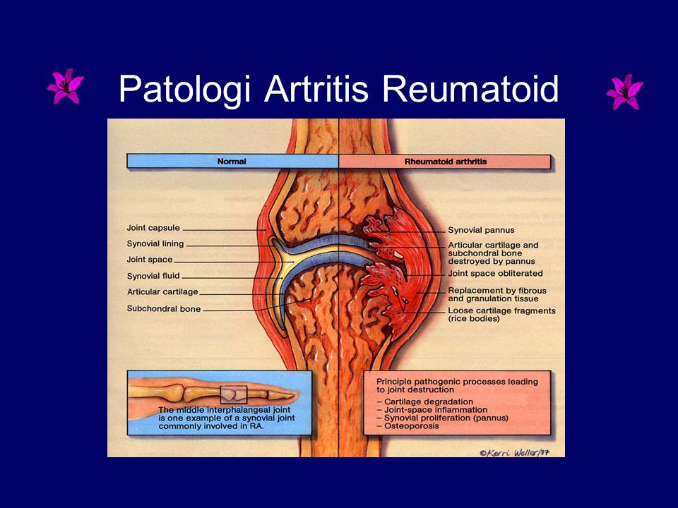 Patologi Artritis Reumatoid