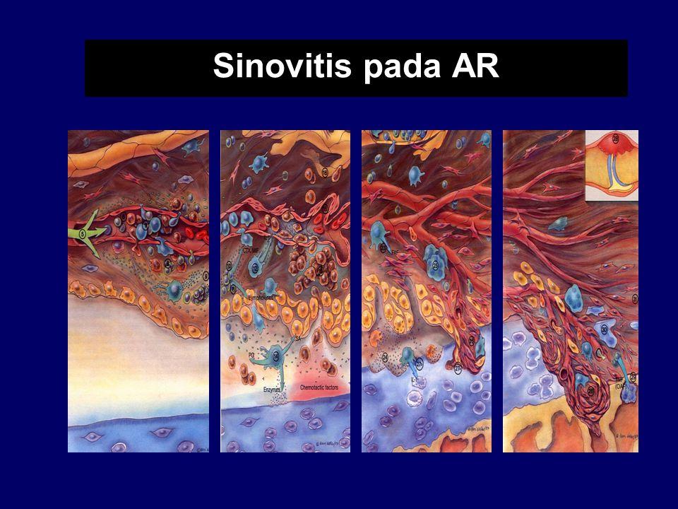 Sinovitis pada AR