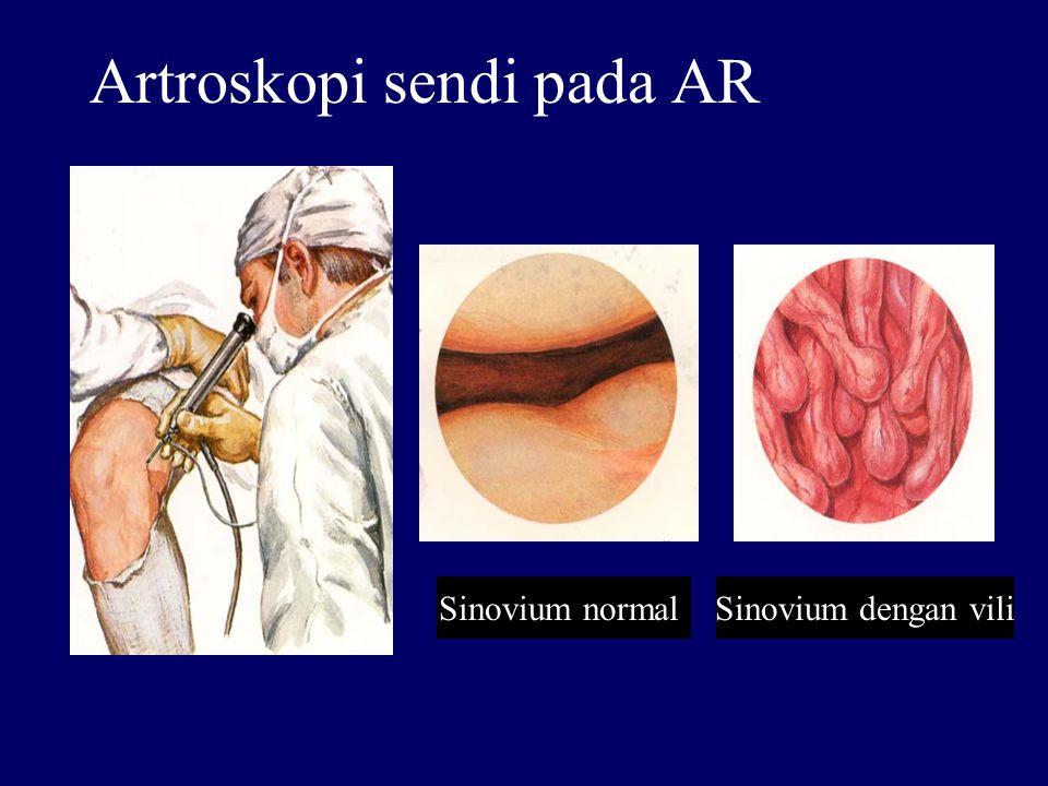 Artroskopi sendi pada AR