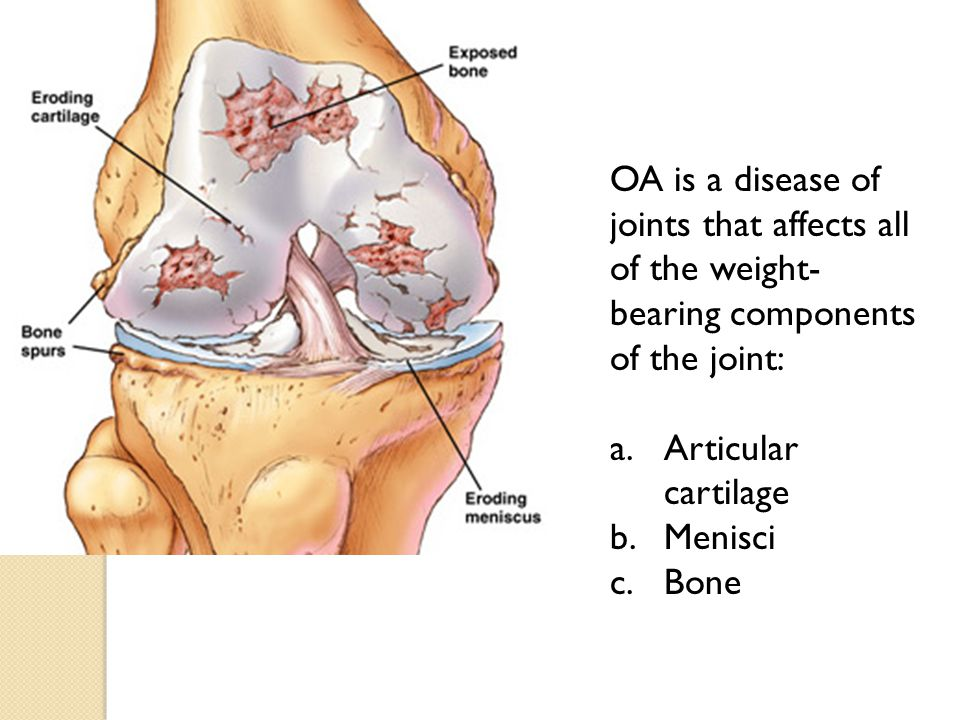 OA is a disease of joints that affects all of the weight-bearing components of the joint: