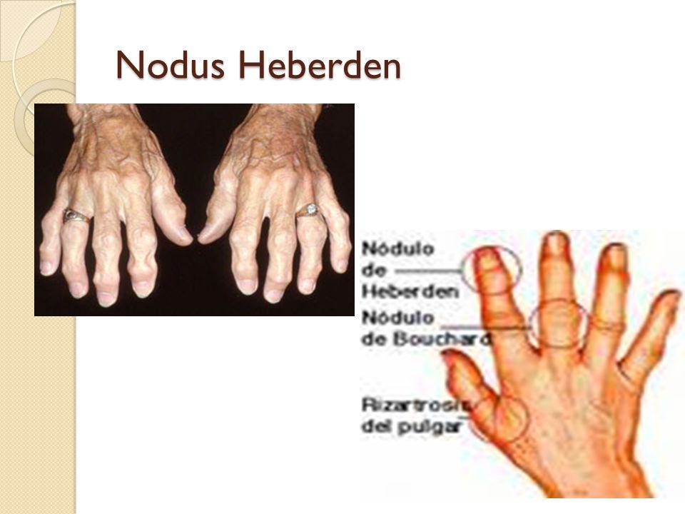 Nodus Heberden