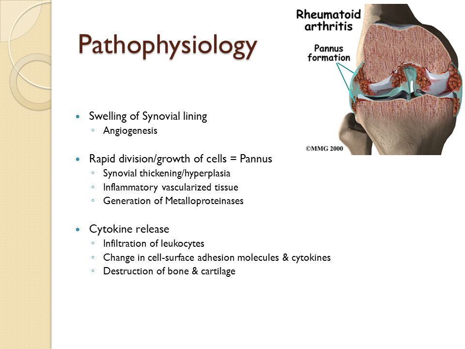 Pathophysiology Swelling of Synovial lining